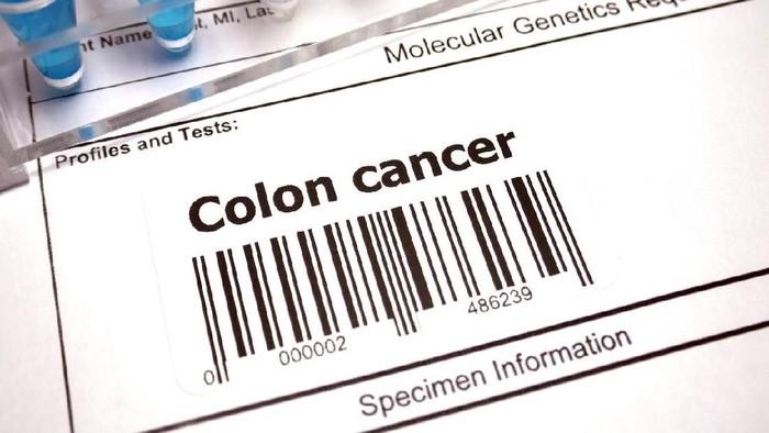 Kanker usus termasu salah satu jenis kanker paling mematikan (Foto: iStock)