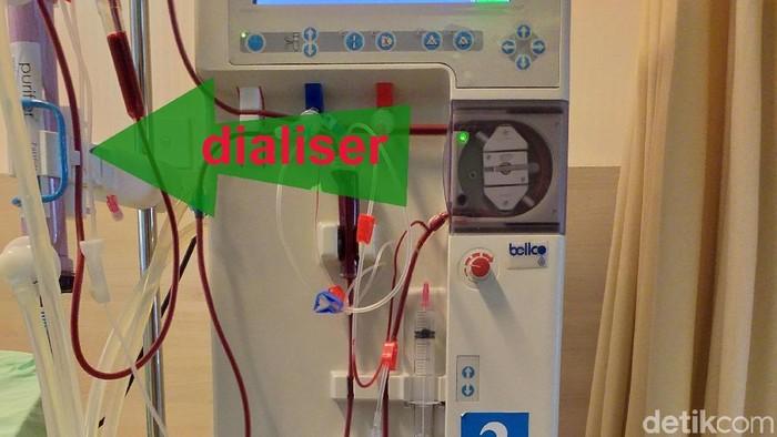 Darah pasien yang disaring melalui dialiser. (Foto: detikHealth)