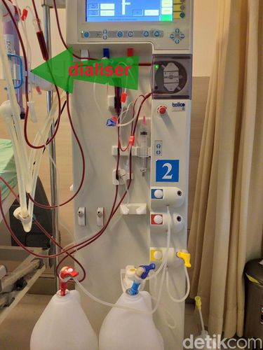 Mesin untuk cuci darah.