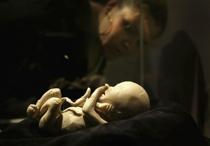 Dipamerkan di Museum Sains di California, ini adalah janin manusia usia 19-20 minggu yang sudah menjalani proses plastinasi. (Foto: David McNew/Getty Images)