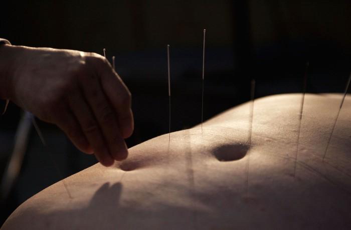 Selain latihan fisik dan diet Huang juga menjalani akupunktur. (Foto: China Photos/Getty Images)