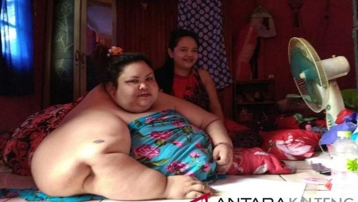Kasus obesitas yang sempat menggemparkan. Foto: Wanita 350 Kg (antara)
