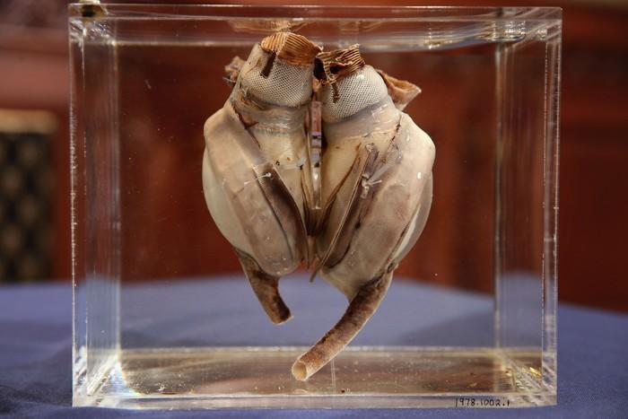 Jantung Liotta-Cooley ini pertama kali digunakan pada tahun 1969 lalu oleh dokter bernama Domingo Liotta dan Denton A. Cooley. (Foto: Chip Somodevilla/Getty Images)