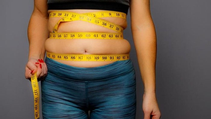 Ilustrasi obesitas ekstrem. Foto: iStock