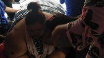 Titi Wati 220 Kg Masih Perlu Dirawat Selama Sebulan Usai Operasi
