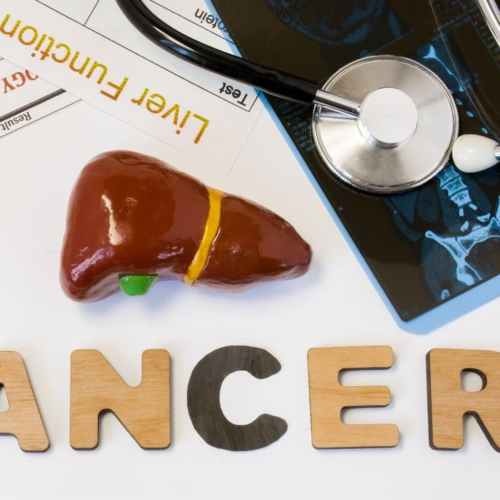 Kanker Hati Tak Bisa Pakai Kemoterapi, Lalu Bagaimana Mengobatinya?