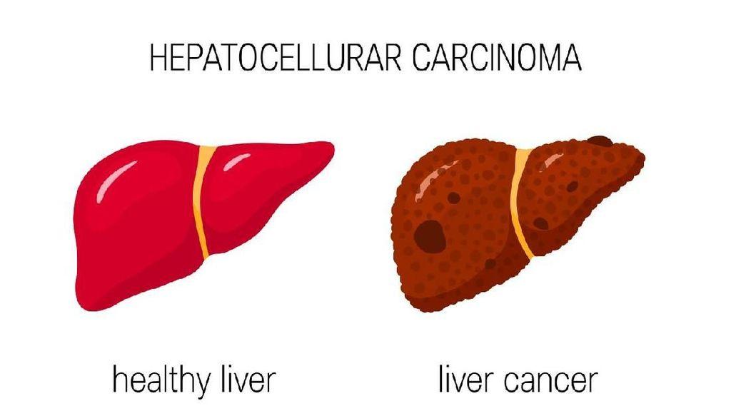 Gejala Mirip Hepatitis, Begini Membedakannya dengan Kanker Hati