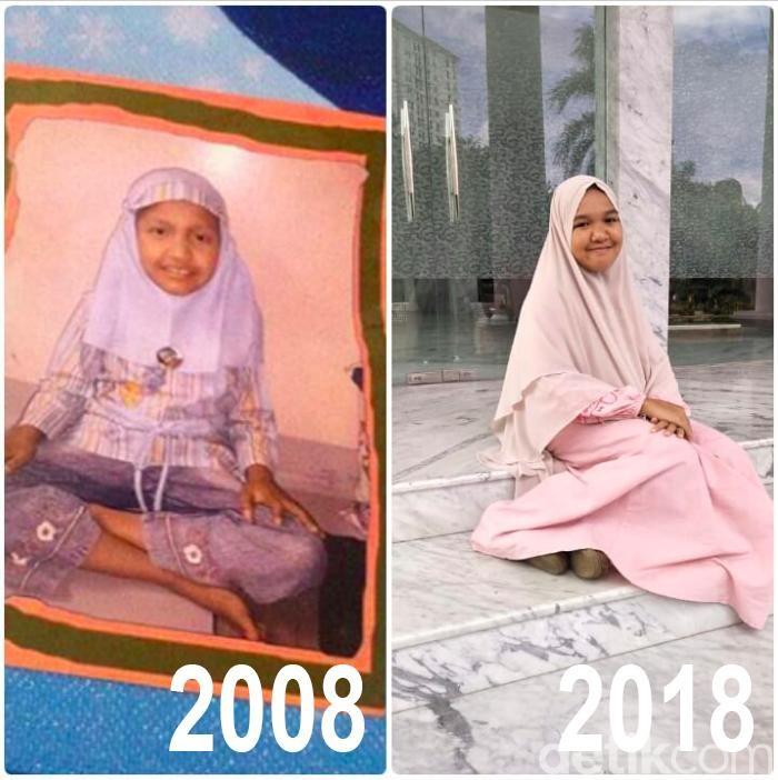 Sepuluh tahun yang lalu, Zahra (20) masih begitu polos untuk memahami kanker ovarium yang ia alami. Kini ia sukses menjadi pendamping guru di salah satu playgroup di Jakarta Selatan. Foto: dok: pribadi via detikHealth
