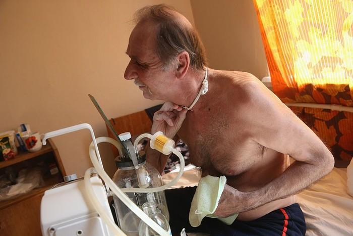 Volodya Gutsyev (62) dari Gomel, Belarus, sedang menyesuaikan lubang bukaan tenggorokannya setelah terkena kanker laring. Gomel termasuk dalam wilayah yang terdampak kontaminasi iodium radioktif ketika reaktor nuklir Chernobyl meledak. (Foto: Sean Gallup/Getty Images)