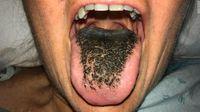 Penampakan lidah berbulu hitam.