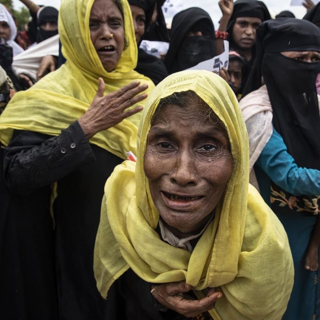800 Pengungsi Rohingya di Bangladesh Terjangkit Cacar Air