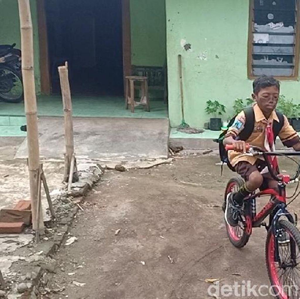 Punya Luka Bakar Akibat Air Keras, Ibu: Samuel Sudah 14 Kali Operasi