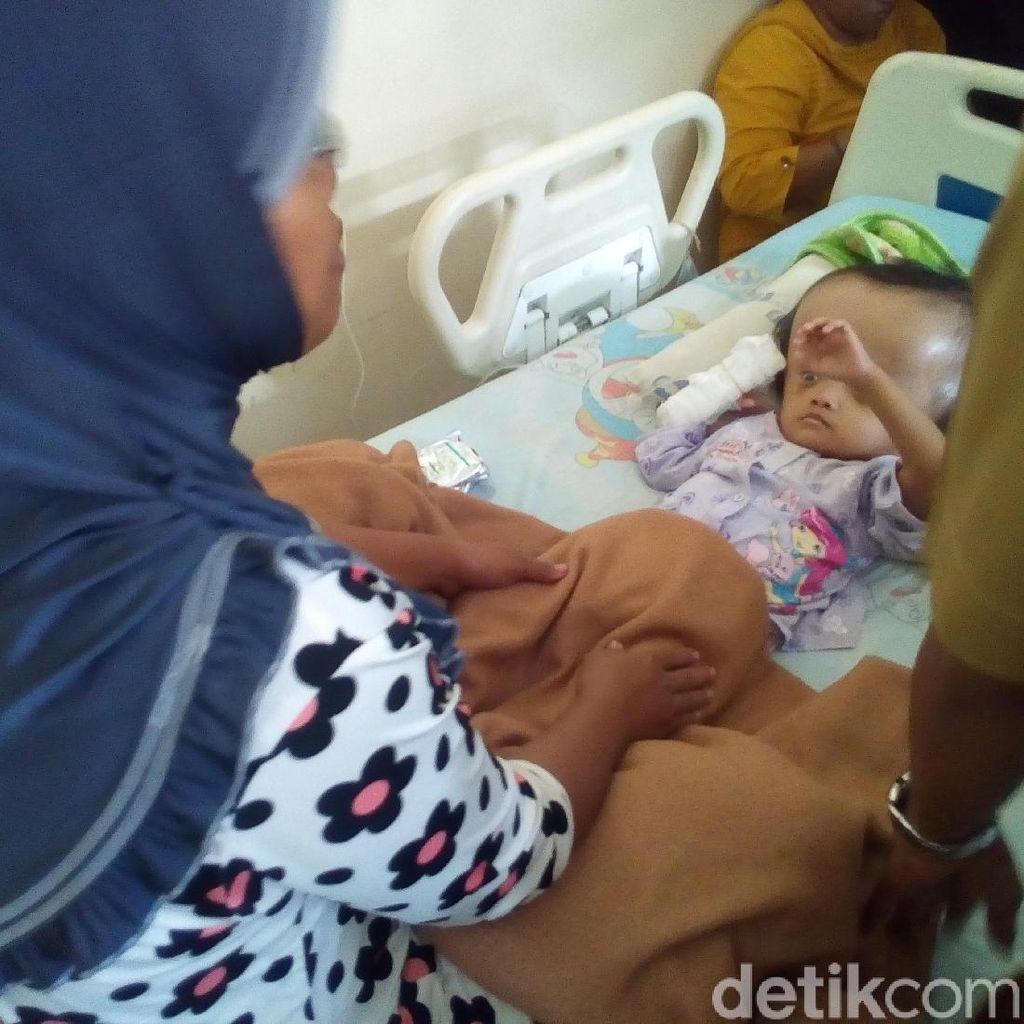 Sejak Lahir, Bocah 3 Tahun di Kudus Ini Menderita Hidrosefalus