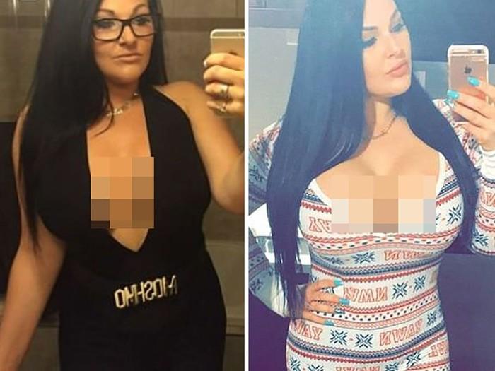 Vicky operasi plastik karena ingin mirip bintang porno. Foto: Twitter