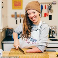 Tak Punya Tangan Kiri, Wanita Ini Gunakan Benjolan di Tangannya untuk Masak