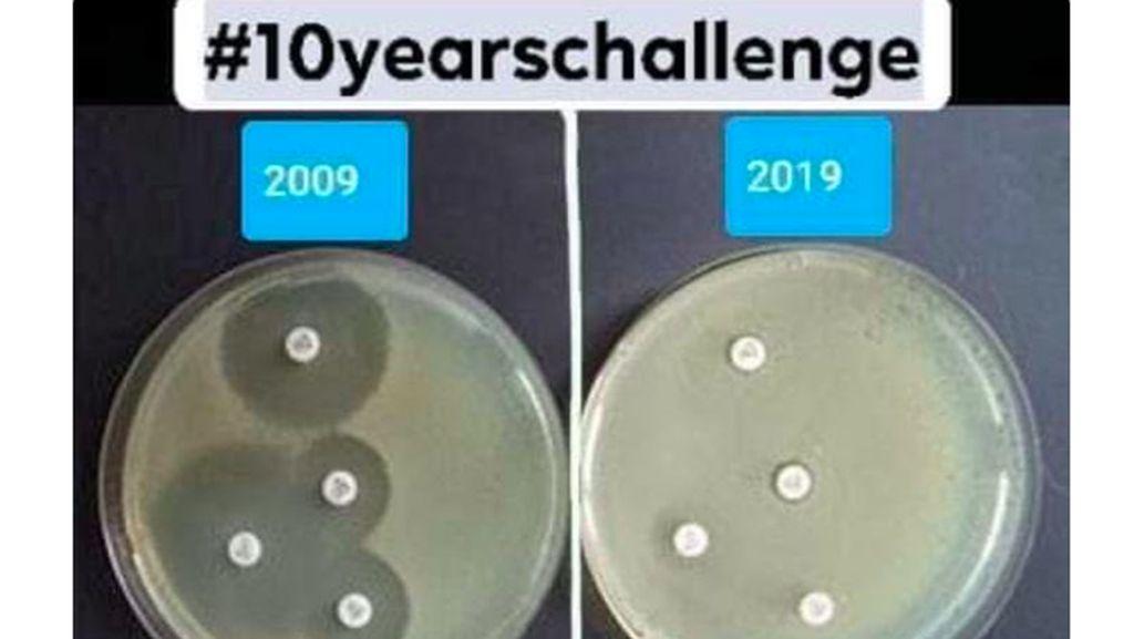 10 Years Challenge yang Ini Bikin Takut Minum Antibiotik