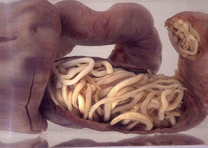 Menurut peneliti ada kemungkinan parasit cacing bisa dimanfaatkan untuk kemandulan, namun perlu studi lebih lanjut. (Foto: Wikimedia Commons/SuSanA Secretariat)
