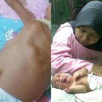 Dada kanzu yang membusung dan kondisi Kanzu saat baru lahir yang membengkak.