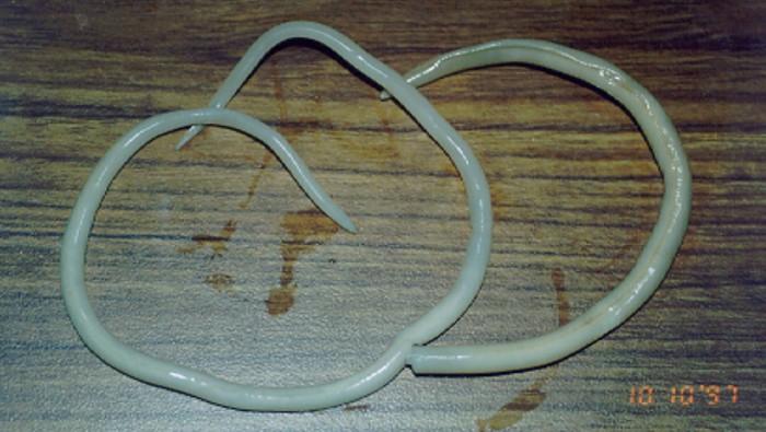 Ilustrasi cacing parasit. Foto: Wikimedia Commons