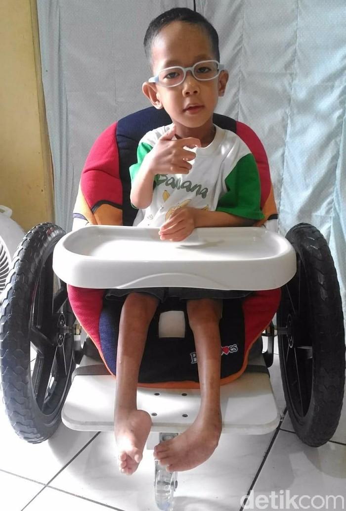 Muhammad Kanzu Ilmi Zarkasih (4,9) lahir dengan kondisi tulang yang rapuh (Osteogenesis Imperfecta) dan kaki yang membengkok ke dalam (Arthrogryposis). Kombinasi keduanya disebut dengan Bruck syndrome. (Foto: Dwi Sriwagiyanti/dok. pribadi)
