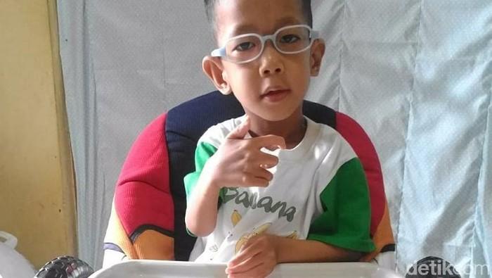 kanzu, pengidap bruck syndrome pertama di Indonesia. Foto: Frieda Isyana Putri/detikHealth