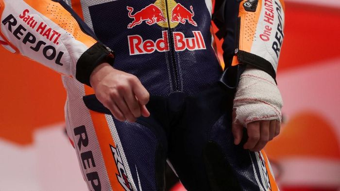 Tangan Jorge Lorenzo masih dibebat karena cedera saat diperkenalkan Repsol Honda. (Foto: Susana Vera/Reuters)