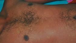 Kasus demam berdarah dengue (DBD) meningkat di beberapa daerah. Salah satu gejala yang bisa muncul adalah ruam merah seperti pada foto-foto ini.