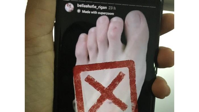 Bella Shofie tunjukkan kakinya yang lecet. Foto: Repro Instagram