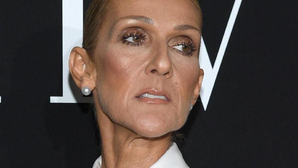 Pujian Netizen untuk Celine Dion yang Berani Hapus Makeup di Video Klip