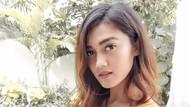 Lagi Seru-seruan Main Bareng Anak, Jessie Amalia Alami Patah Kaki
