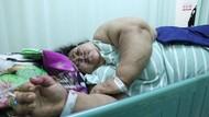 Dokter Potong Lambung Wanita Berbobot 148 Kg Asal Karawang
