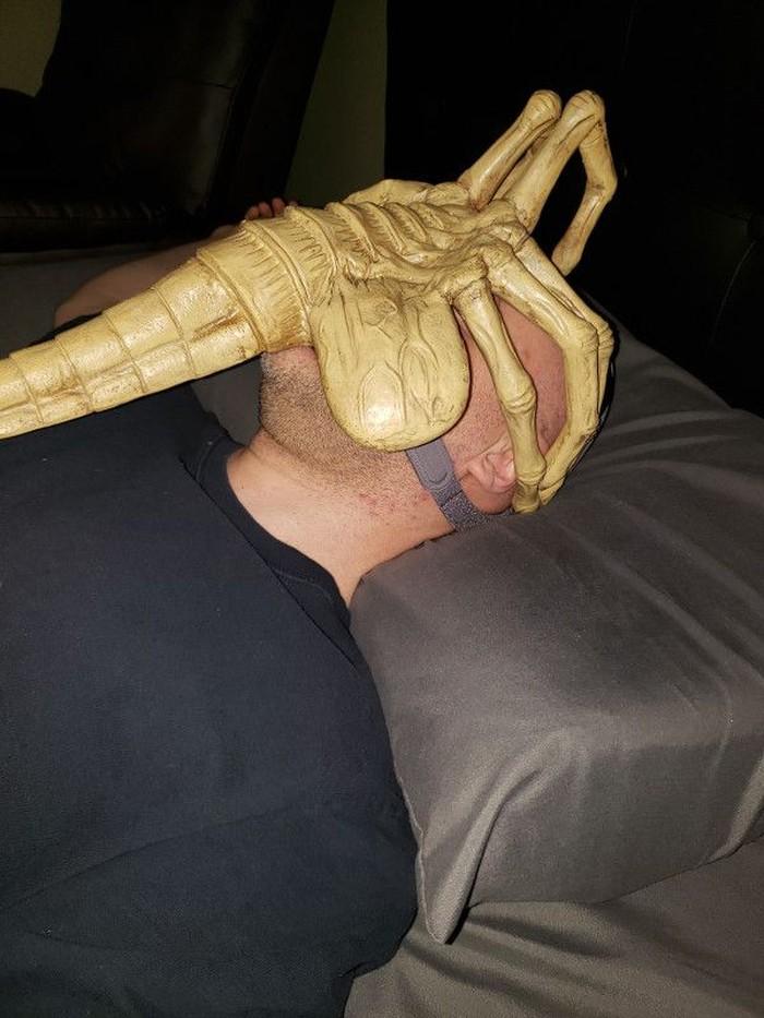 Sekilas mungkin menyeramkan namun CCAP facehugger ini sesuatu yang penting untuk kesehatan Jared. (Foto: jaredisgray.com)