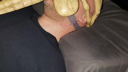 Alat continuous positive airway pressure (CPAP) digunakan agar napas pengidap apnea tidur tidak berhenti mendadak di malam hari.