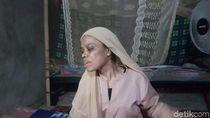 Pulang dari Abu Dhabi, TKI Asal Serang Penuh Lebam Akibat Siksaan