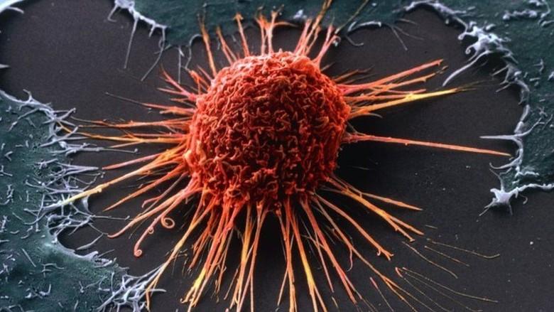 Ditemukan Obat Baru Efektif Sembuhkan Pasien Kanker Stadium Lanjut