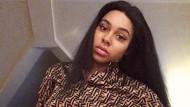 Potret Chelsea, Wanita yang Jadi Model Berkat Punya Stretch Mark
