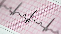 50.000 Bayi di Indonesia Punya Penyakit Jantung Bawaan, Bisakah Dideteksi?