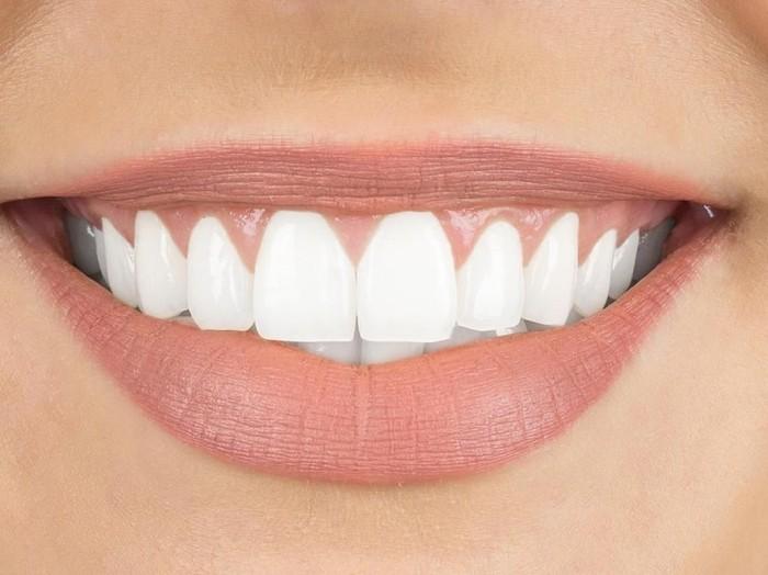17 Cara Memutihkan Gigi Kuning Secara Alami/Foto: iStock