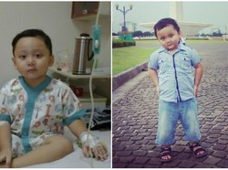 Awalnya Dikira DBD, Tak Tahunya Bima Idap Leukemia