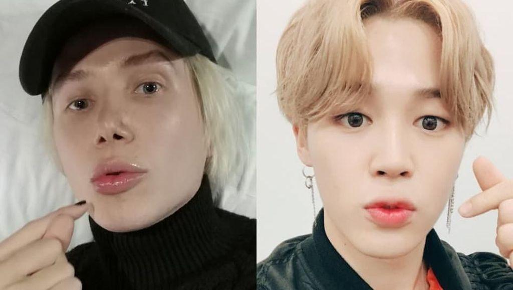 Operasi Plastik Mirip Jimin BTS, Hidung Pria Bule Ini Terancam Copot