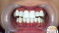 Sebelum pasang veneer gigi pastikan kalau yang melakukannya dokter gigi profesional. Pengalaman orang-orang ini menceritakan bahaya veneer gigi yang gagal.