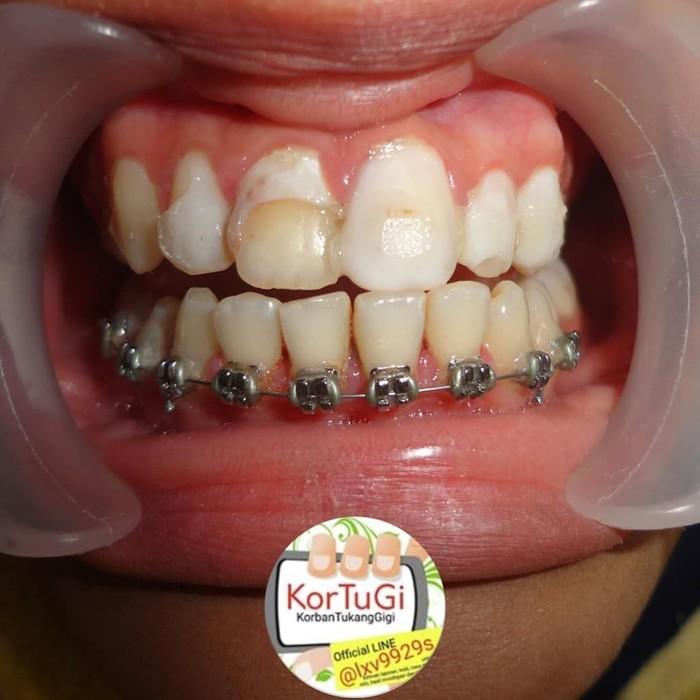 Akun Instagram @korbantukanggigi mengumpulkan pengalaman cerita dari berbagai pasien yang pernah datang ke dokter gigi karena pemasangan veneer gagal. (Foto: Instagram/aprekadrgsport/korbantukanggigi)