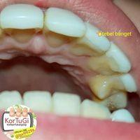 Veneer gigi yang gagal terpasang.
