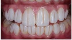Berapa Harga Veneer Gigi yang Biasa Dikerjakan Dokter di Klinik?