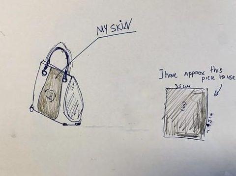 Ngeri, Wanita Ini Bikin Tas Dari Kulit Kakinya yang Diamputasi