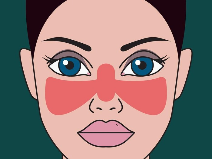 Mengenal Penyakit Lupus, Gejala, Penyebab, Pencegahan, dan Pengobatannya/Foto: iStock