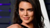 Hidung Kendall Jenner Disebut Hasil Oplas, Ini Foto Before-Afternya