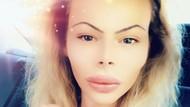 Pria Ini Kecanduan Botox Agar Mirip Barbie Hidup, Habiskan Rp 240 Juta