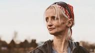 Kisah Wanita yang Menua 8 Kali Lebih Cepat dari Orang Pada Umumnya
