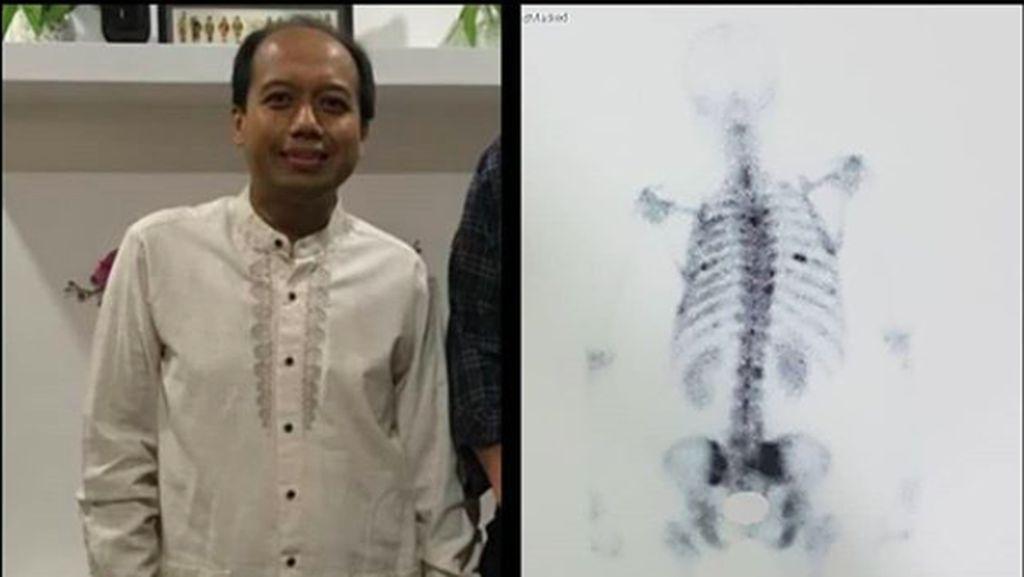 Almarhum Sutopo PN Juga Punya Skoliosis, Begini Kaitannya dengan Kanker Paru